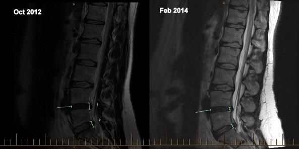 MRI collage